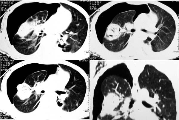 Pneumothorax Mycetoma   600 x 404 jpeg 37kB